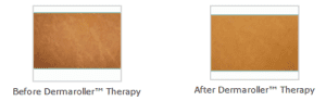 Before and after Dermaroller Therapy Swindon